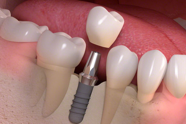 Cheap Dental Implants1