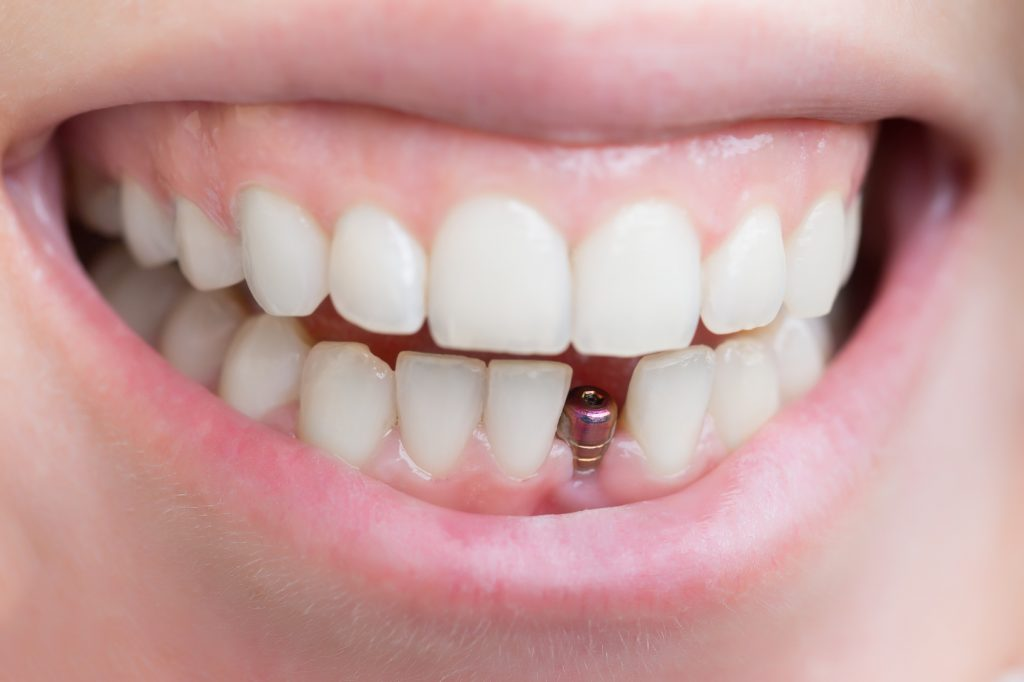 Cheap Dental Implants3