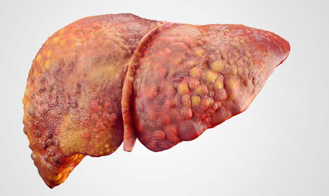 Get Cured from Liver Damage1
