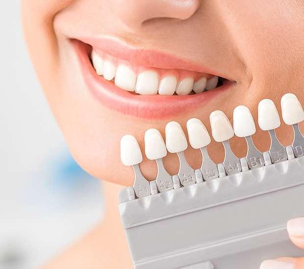 Teeth Veneer Essentials